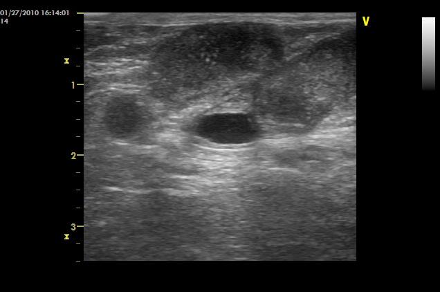 ハリネズミの子宮の腫瘍のエコー