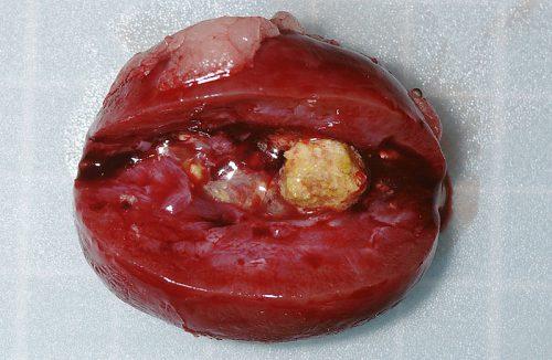 ウサギ腎臓結石